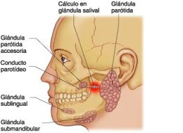 Cálculos-en-glándula-salival